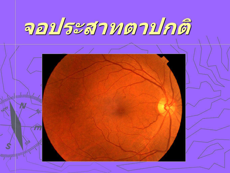 จอประสาทตาปกติ