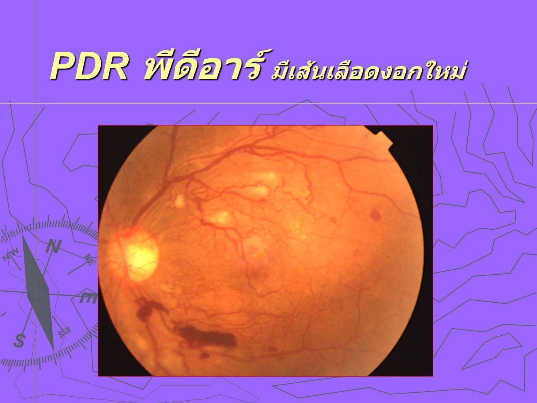 NPDR ในรายที่เป็นมาก 50% ของ NPDR ที่เป็นมาก กลายเป็น PDR ใน 1 ปี  50% ของ NPDR ที่เป็นมาก กลายเป็น PDR ใน 1 ปี 15% เป็น PDR ร้ายแรง มีเลือดออกในวุ้นตา 15% เป็น PDR ร้ายแรง มีเลือดออกในวุ้นตา  75% ของ NPDR ที่เป็นมากที่สุด กลายเป็น PDR ใน 1 ปี 45% เป็น PDR ชนิดร้ายแรง ใน 1 ปี 45% เป็น PDR ชนิดร้ายแรง