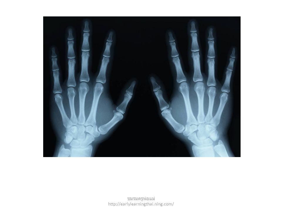 x-ray ชมรมครูพ่อแม่ http://earlylearningthai.ning.com/