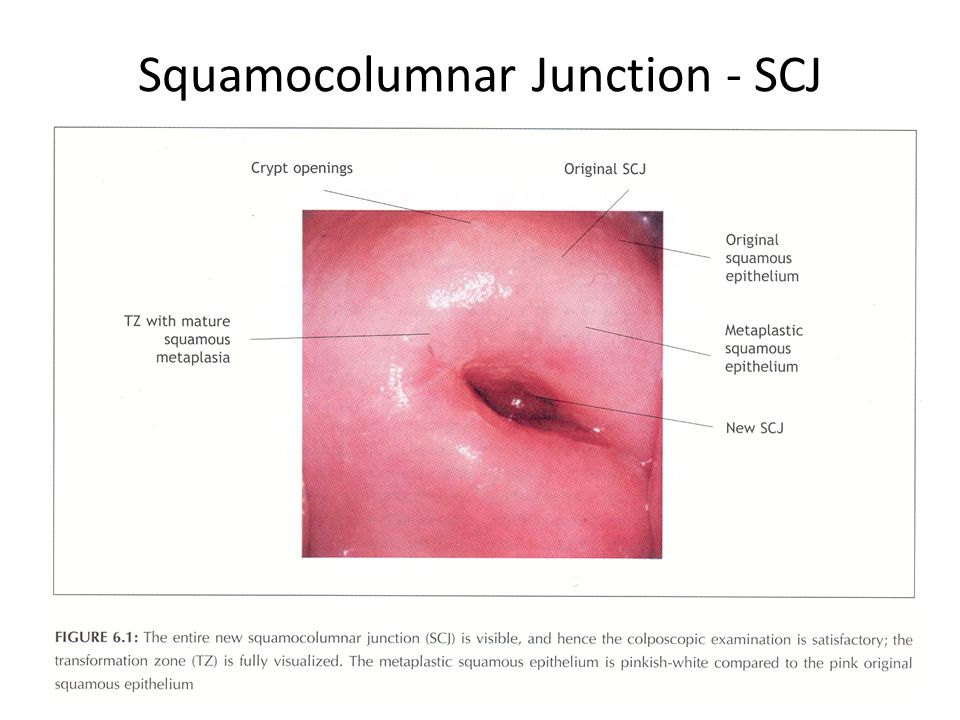 Squamocolumnar Junction - SCJ