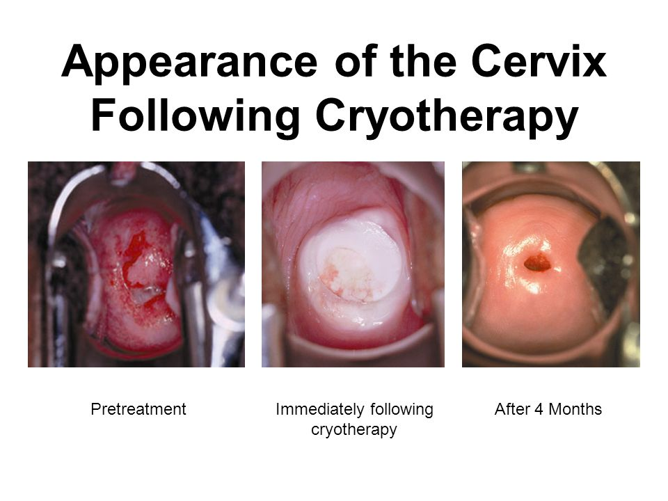 Appearance of the Cervix Following Cryotherapy PretreatmentImmediately following cryotherapy After 4 Months
