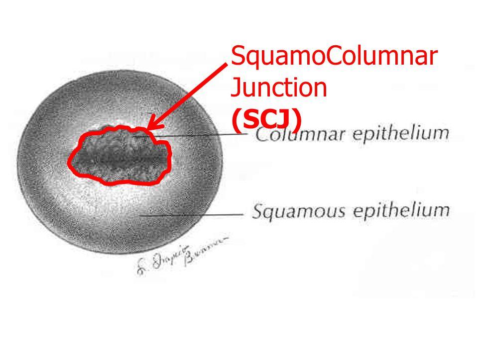 ธรรมชาติของมะเร็งปาก มดลูก มะเร็งเกิดที่บริเวณ SCJ ของปาก มดลูก ไม่ค่อยมีอาการ ค่อยๆลุกลามไปเนื้อเยื่อข้างเคียง / อุ้งเชิงกราน ไปต่อมน้ำเหลืองบริเวณใกล้เคียง กระจายไปทั่วร่างกายในระยะท้ายๆ