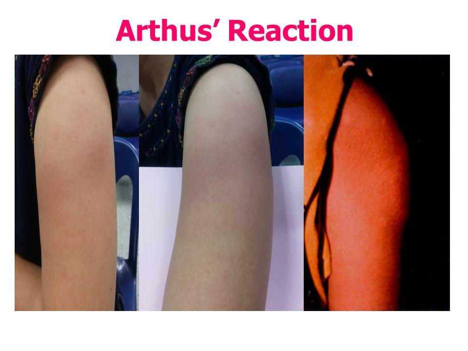 Arthus' Reaction