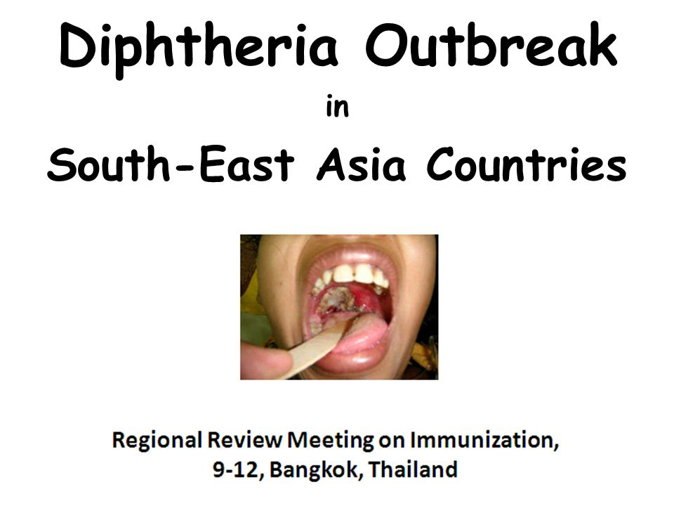 Diphtheria Outbreak in South-East Asia Countries