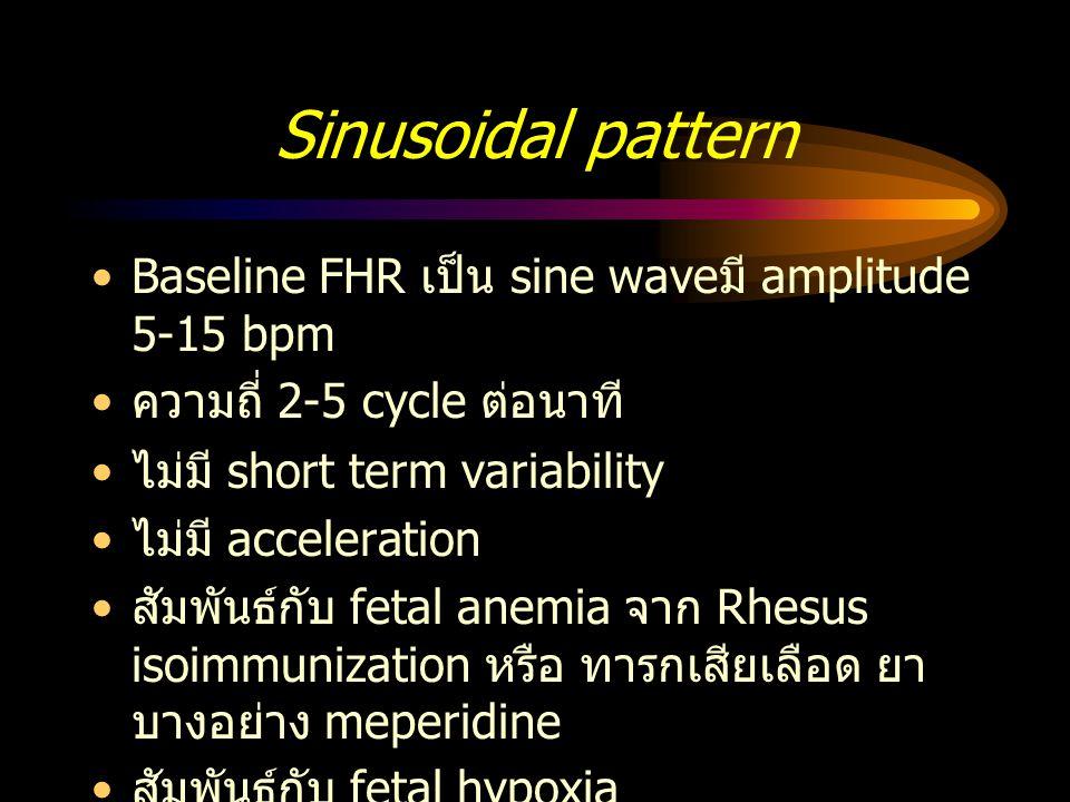 Sinusoidal pattern Baseline FHR เป็น sine wave มี amplitude 5-15 bpm ความถี่ 2-5 cycle ต่อนาที ไม่มี short term variability ไม่มี acceleration สัมพันธ