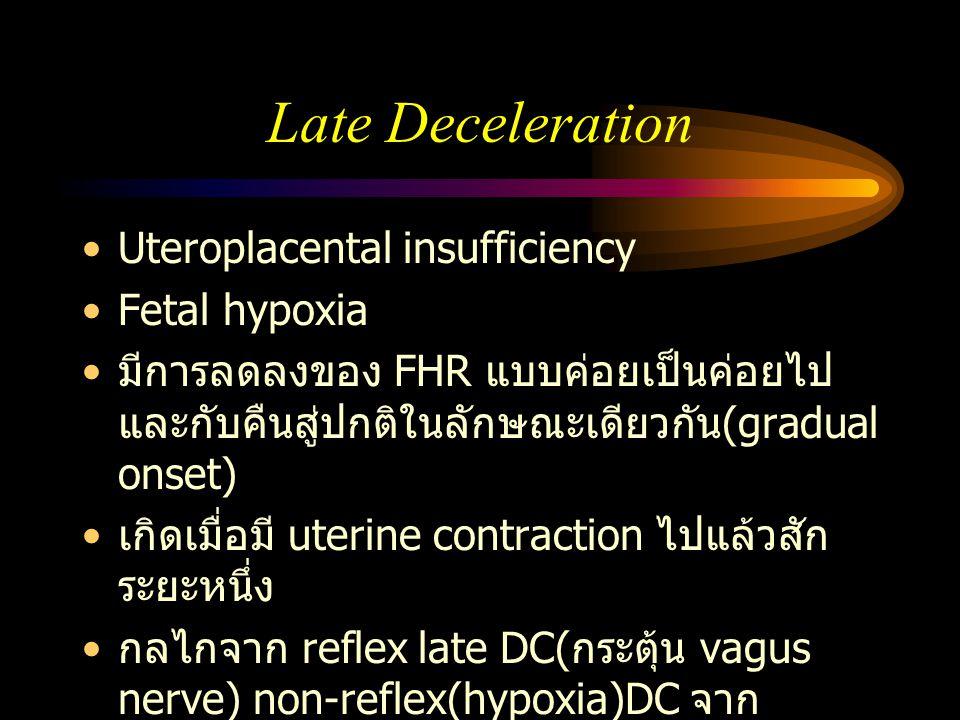 Late Deceleration Uteroplacental insufficiency Fetal hypoxia มีการลดลงของ FHR แบบค่อยเป็นค่อยไป และกับคืนสู่ปกติในลักษณะเดียวกัน (gradual onset) เกิดเ