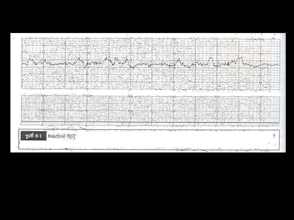 การอ่านองค์ประกอบของ EFM Baseline 110-160 bpm < 110= fetal bradycardia >160= fetal tachycardia Variability 5-25 bpm <5 bpm= decrease variability >25 bpm= mark vaiability Periodic pattern acceleration deceleration early= head compression variable= cord compression late = placental insufficiency