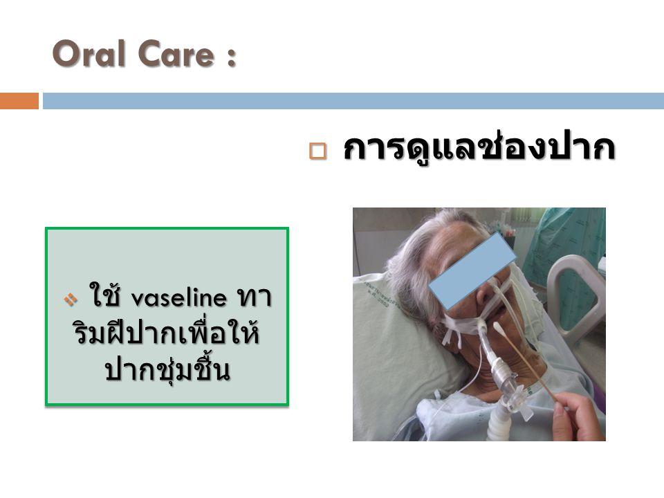 Oral Care :  ใช้ vaseline ทา ริมฝีปากเพื่อให้ ปากชุ่มชื้น  การดูแลช่องปาก