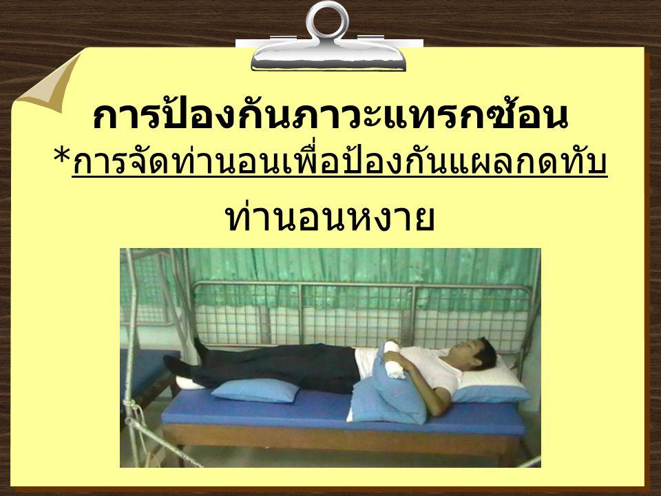 การป้องกันภาวะแทรกซ้อน * การจัดท่านอนเพื่อป้องกันแผลกดทับ ท่านอนหงาย