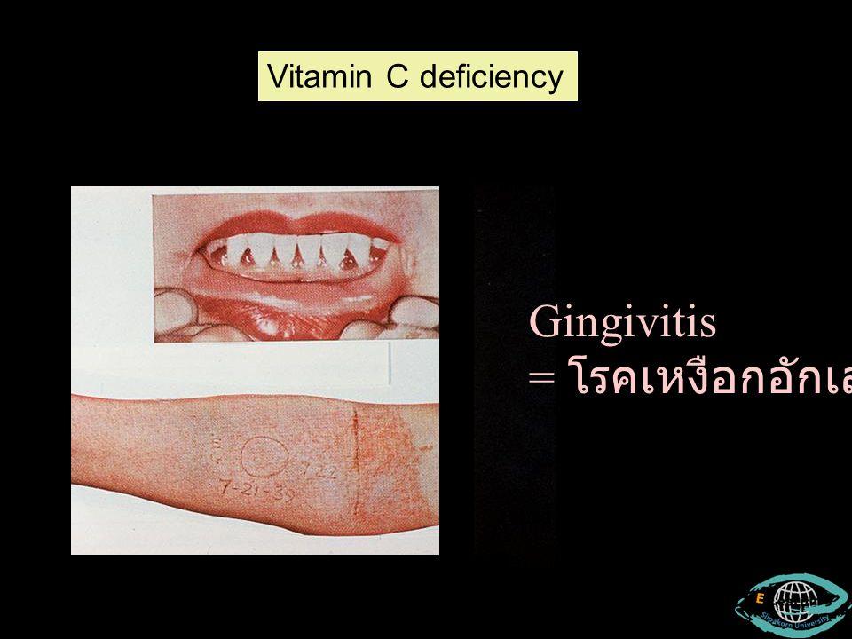 Gingivitis = โรคเหงือกอักเสบ Vitamin C deficiency