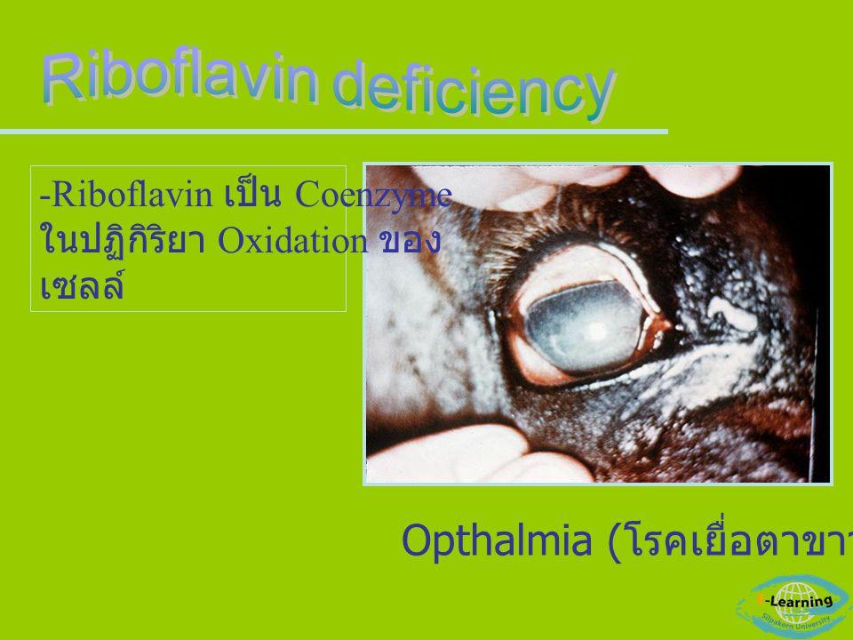 Opthalmia ( โรคเยื่อตาขาวอักเสบ ) -Riboflavin เป็น Coenzyme ในปฏิกิริยา Oxidation ของ เซลล์