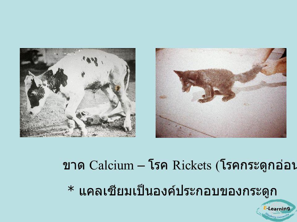 ขาด Calcium – โรค Rickets ( โรคกระดูกอ่อน ) * แคลเซียมเป็นองค์ประกอบของกระดูก