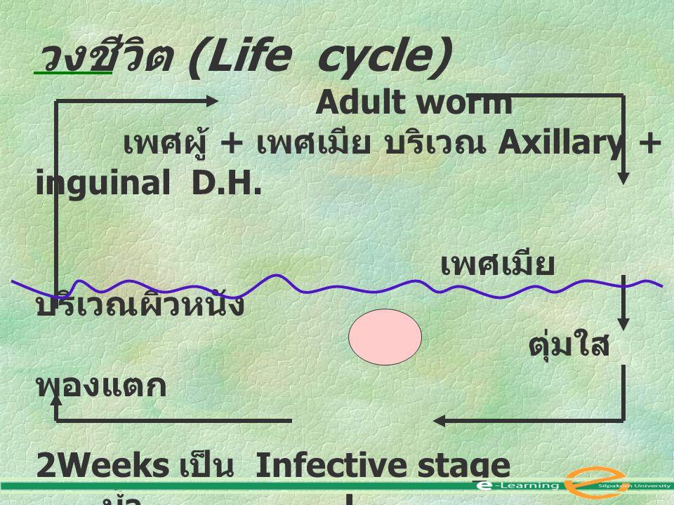 วงชีวิต (Life cycle) Adult worm เพศผู้ + เพศเมีย บริเวณ Axillary + inguinal D.H. เพศเมีย บริเวณผิวหนัง ตุ่มใส พองแตก 2Weeks เป็น Infective stage น้ำ L
