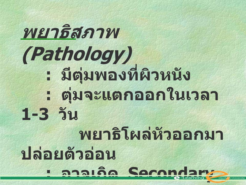 พยาธิสภาพ (Pathology) : มีตุ่มพองที่ผิวหนัง : ตุ่มจะแตกออกในเวลา 1-3 วัน พยาธิโผล่หัวออกมา ปล่อยตัวอ่อน : อาจเกิด Secondary infection : พยาธิตัวที่ตาย