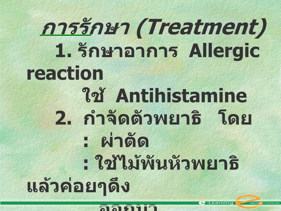 การรักษา (Treatment) 1. รักษาอาการ Allergic reaction ใช้ Antihistamine 2. กำจัดตัวพยาธิ โดย : ผ่าตัด : ใช้ไม้พันหัวพยาธิ แล้วค่อยๆดึง ออกมา 3. ยา Hetr