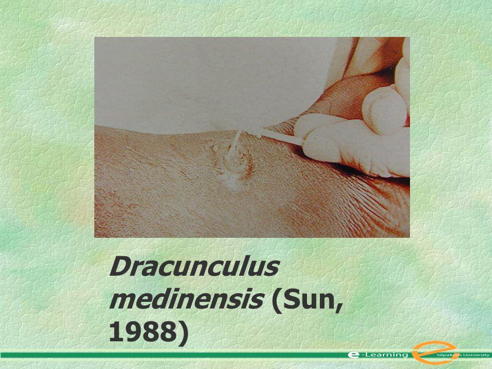 Dracunculus medinensis (Sun, 1988)