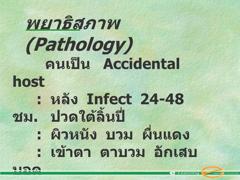 พยาธิสภาพ (Pathology) คนเป็น Accidental host : หลัง Infect 24-48 ชม. ปวดใต้ลิ้นปี่ : ผิวหนัง บวม ผื่นแดง : เข้าตา ตาบวม อักเสบ บอด : ปอดอักเสบ : สมอง