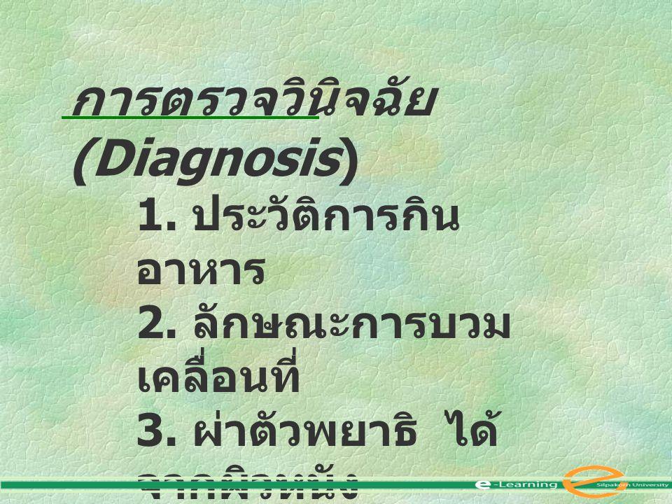 การตรวจวินิจฉัย (Diagnosis) 1. ประวัติการกิน อาหาร 2. ลักษณะการบวม เคลื่อนที่ 3. ผ่าตัวพยาธิ ได้ จากผิวหนัง