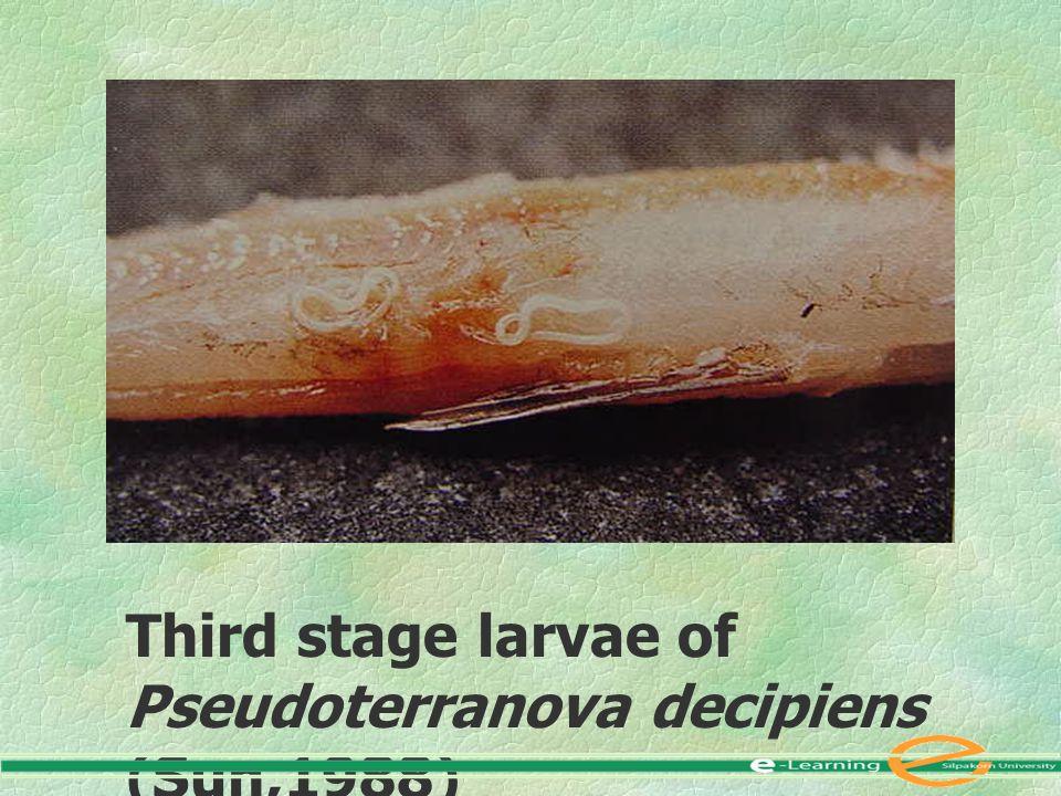 Third stage larvae of Pseudoterranova decipiens (Sun,1988)