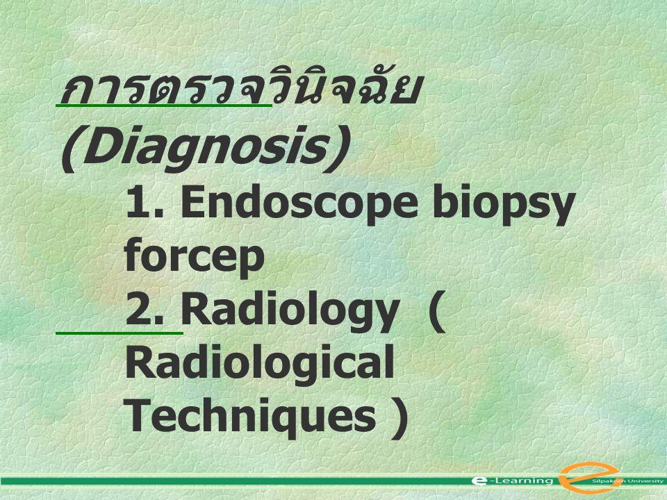 การตรวจวินิจฉัย (Diagnosis) 1.Endoscope biopsy forcep 2.