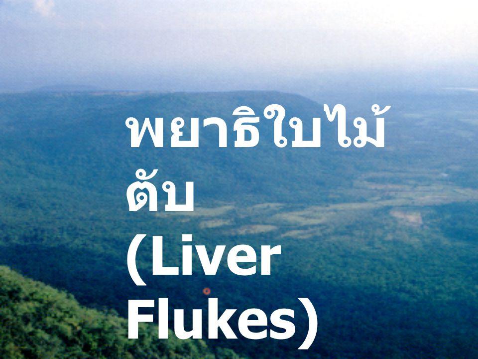 พยาธิใบไม้ ตับ (Liver Flukes)