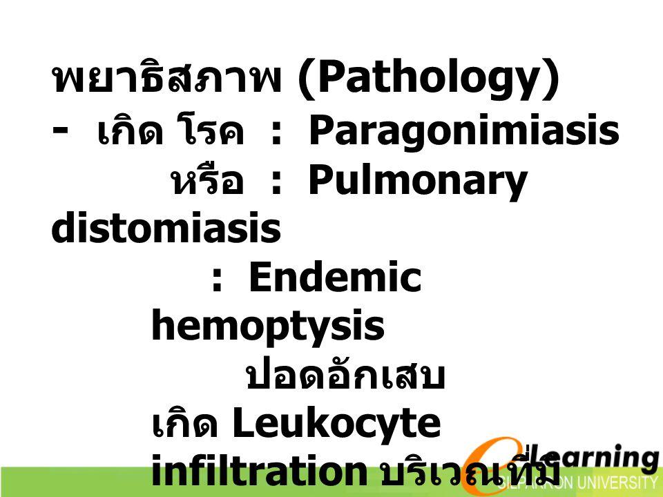 พยาธิสภาพ (Pathology) - เกิด โรค : Paragonimiasis หรือ : Pulmonary distomiasis : Endemic hemoptysis ปอดอักเสบ เกิด Leukocyte infiltration บริเวณที่มี พยาธิเกิด Extrapulmonary paragonimiasis