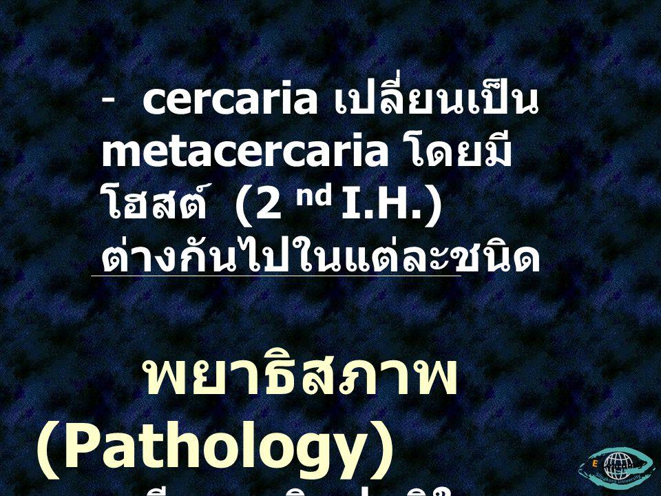 - cercaria เปลี่ยนเป็น metacercaria โดยมี โฮสต์ (2 nd I.H.) ต่างกันไปในแต่ละชนิด พยาธิสภาพ (Pathology) - มีความผิดปกติใน ระบบ G.I. Tract