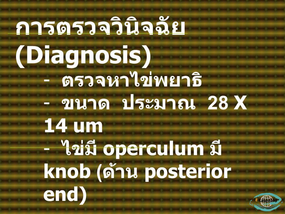 การตรวจวินิจฉัย (Diagnosis) - ตรวจหาไข่พยาธิ - ขนาด ประมาณ 28 X 14 um - ไข่มี operculum มี knob ( ด้าน posterior end) การรักษา (Treatment) - มีรายงานก