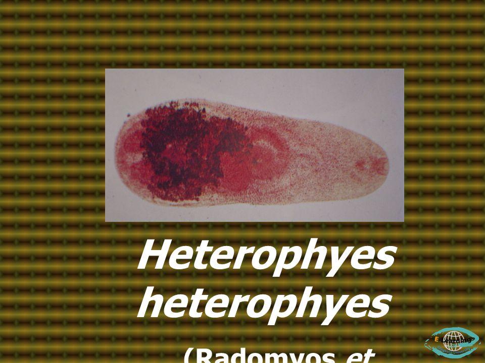 Heterophyes heterophyes (Radomyos et al., 1997)