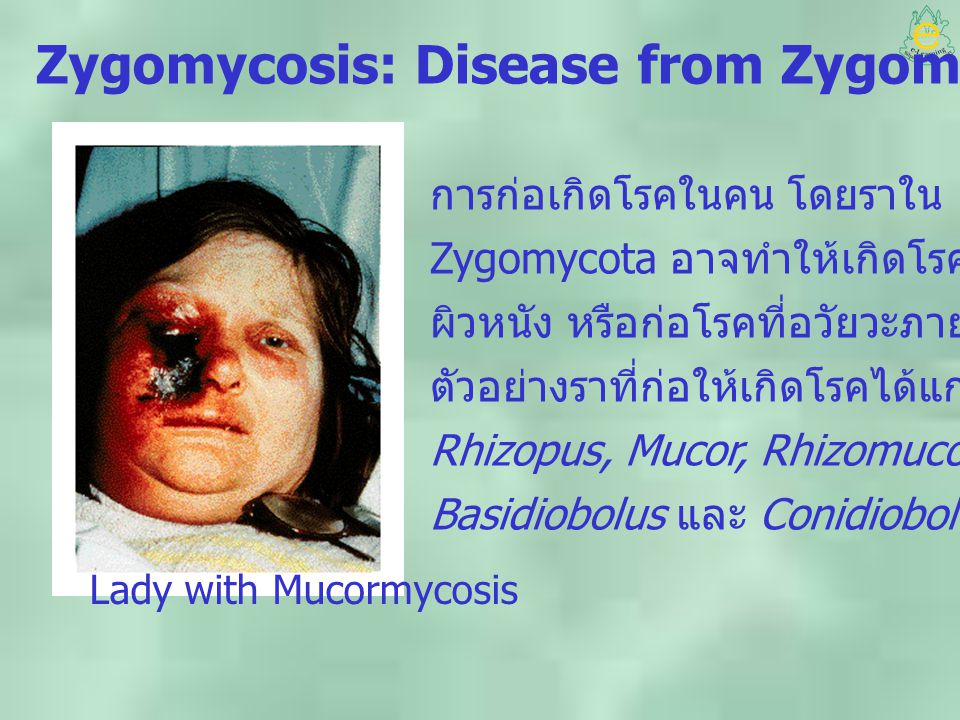 Zygomycosis: Disease from Zygomycota Lady with Mucormycosis การก่อเกิดโรคในคน โดยราใน division Zygomycota อาจทำให้เกิดโรคในชั้นใต้ ผิวหนัง หรือก่อโรคท