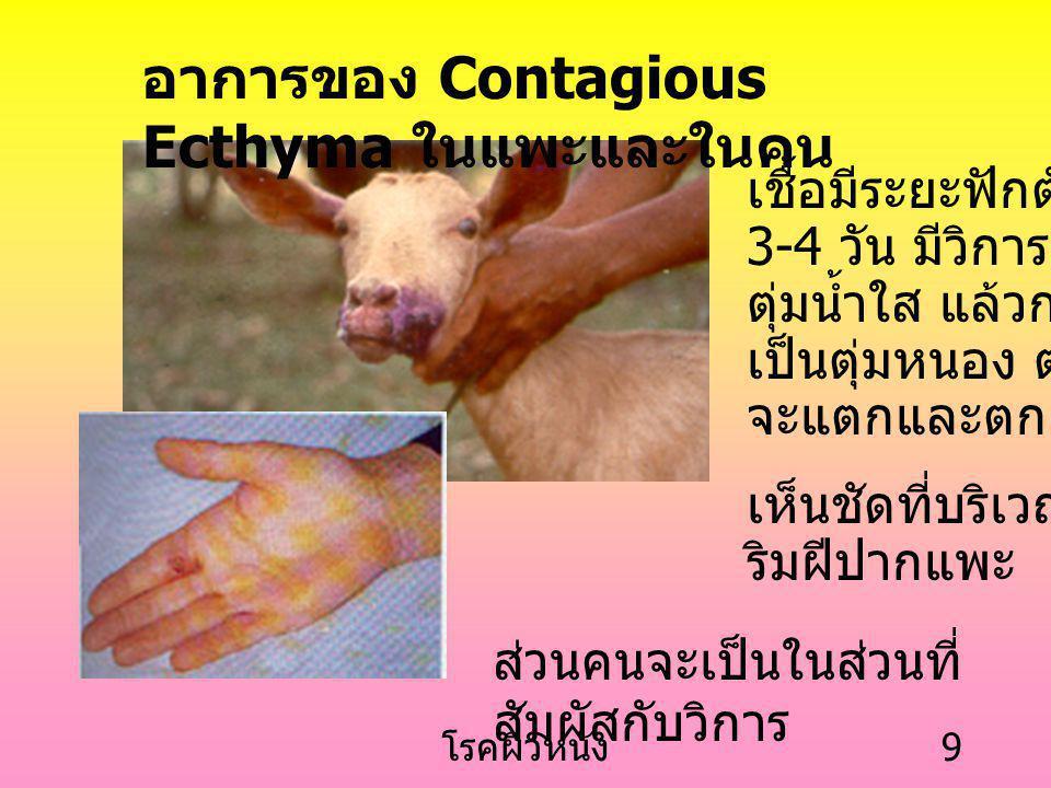 โรคผิวหนัง 9 อาการของ Contagious Ecthyma ในแพะและในคน เชื้อมีระยะฟักตัวสั้น 3-4 วัน มีวิการเป็น ตุ่มน้ำใส แล้วกลาย เป็นตุ่มหนอง ต่อมา จะแตกและตกสะเก็ด เห็นชัดที่บริเวณ ริมฝีปากแพะ ส่วนคนจะเป็นในส่วนที่ สัมผัสกับวิการ