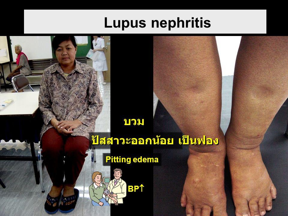 Lupus nephritis Pitting edema ปัสสาวะออกน้อย เป็นฟอง บวม BP 