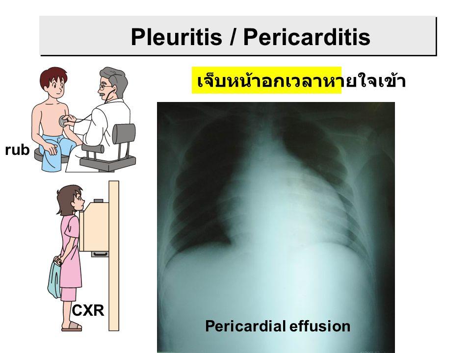 Pleuritis / Pericarditis เจ็บหน้าอกเวลาหายใจเข้า CXR rub Bilateral pleural effusion Lower lobe infiltration Pericardial effusion