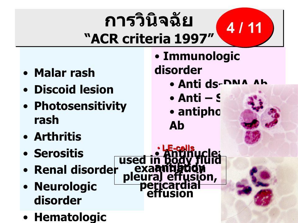 """การวินิจฉัย """"ACR criteria 1997"""" Malar rash Discoid lesion Photosensitivity rash Arthritis Serositis Renal disorder Neurologic disorder Hematologic dis"""