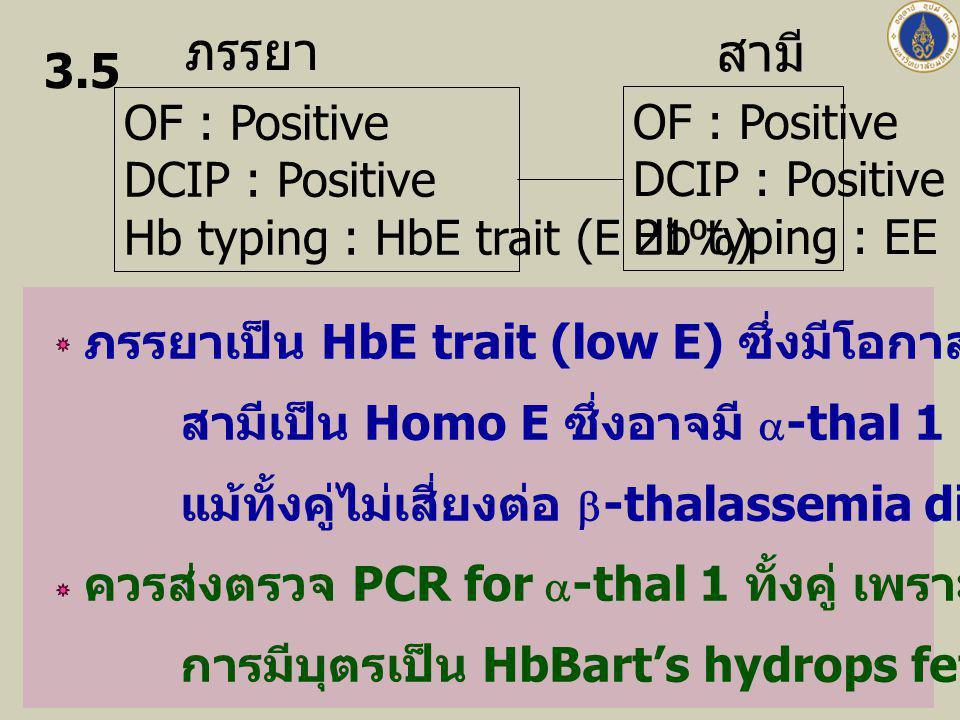ภรรยา สามี OF : Positive DCIP : Positive Hb typing : HbE trait (E 21%) OF : Positive DCIP : Positive Hb typing : EE 3.5 ภรรยาเป็น HbE trait (low E) ซึ