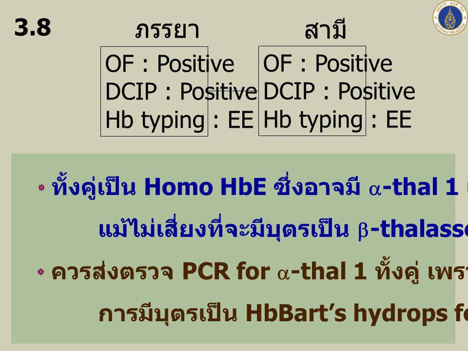 ภรรยา สามี OF : Positive DCIP : Positive Hb typing : EE OF : Positive DCIP : Positive Hb typing : EE 3.8 ทั้งคู่เป็น Homo HbE ซึ่งอาจมี  -thal 1 แฝงอ