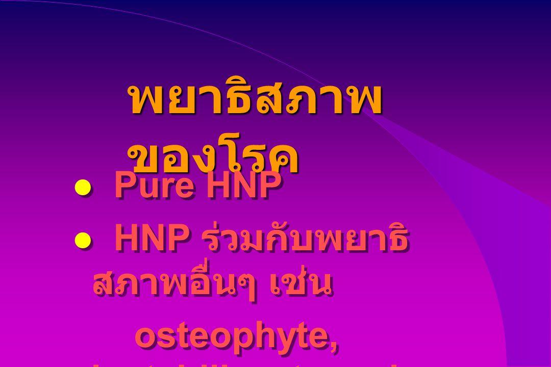 พยาธิสภาพ ของโรค Pure HNP HNP ร่วมกับพยาธิ สภาพอื่นๆ เช่น osteophyte, instabiliy, stenosis Pure HNP HNP ร่วมกับพยาธิ สภาพอื่นๆ เช่น osteophyte, instab