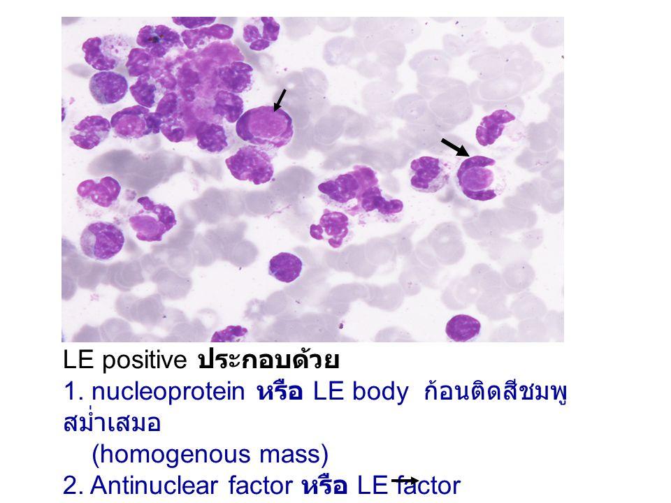 LE positive ประกอบด้วย 1.nucleoprotein หรือ LE body ก้อนติดสีชมพู สม่ำเสมอ (homogenous mass) 2.