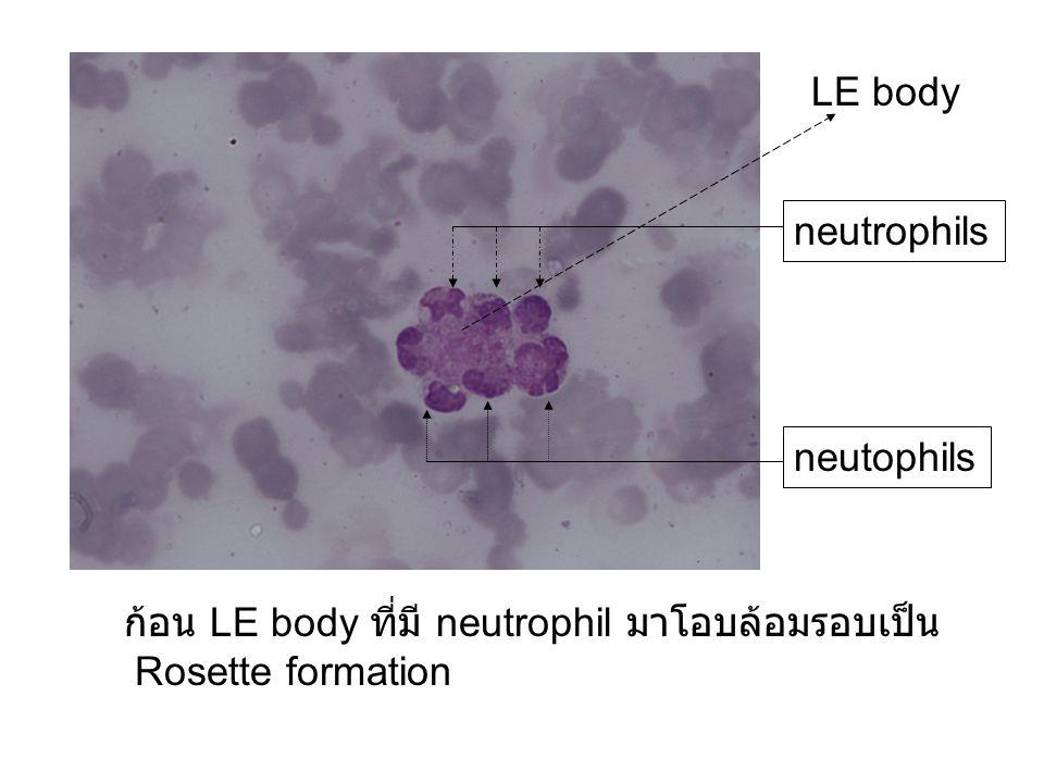ก้อน LE body ที่มี neutrophil มาโอบล้อมรอบเป็น Rosette formation LE body neutrophils neutophils