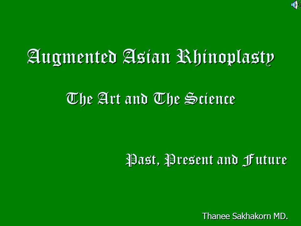 Bioprostheses correct the dorsum injecton of liquid silicone