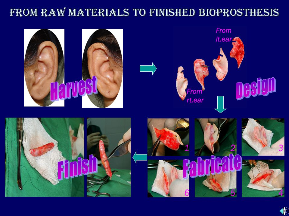 From raw materials to finished bioprosthesis