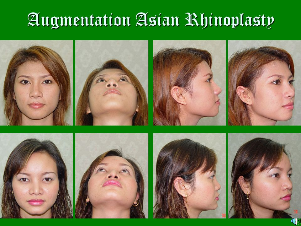 In the old day of Asian rhinoplasty Injected liquid paraffin or liquid silicone Injected liquid paraffin or liquid silicone L-shaped alloplastic L-shaped alloplastic implant, mainly implant, mainly silicone elastomer.