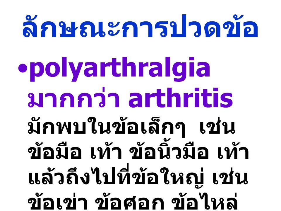 ลักษณะการปวดข้อ polyarthralgia มากกว่า arthritis มักพบในข้อเล็กๆ เช่น ข้อมือ เท้า ข้อนิ้วมือ เท้า แล้วถึงไปที่ข้อใหญ่ เช่น ข้อเข่า ข้อศอก ข้อไหล่ ข้อส