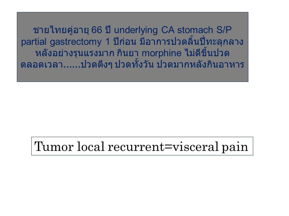 ชายไทยคู่อายุ 66 ปี underlying CA stomach S/P partial gastrectomy 1 ปีก่อน มีอาการปวดลิ้นปี่ทะลุกลาง หลังอย่างรุนแรงมาก กินยา morphine ไม่ดีขึ้นปวด ตล