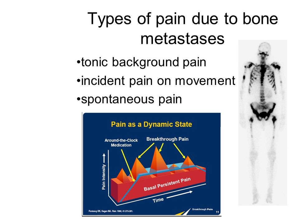 Types of pain due to bone metastases tonic background pain incident pain on movement spontaneous pain