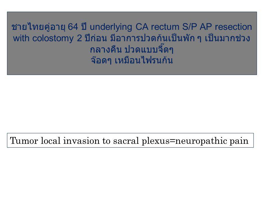 ชายไทยคู่อายุ 64 ปี underlying CA rectum S/P AP resection with colostomy 2 ปีก่อน มีอาการปวดก้นเป็นพัก ๆ เป็นมากช่วง กลางคืน ปวดแบบจี๊ดๆ จ๊อดๆ เหมือนไ