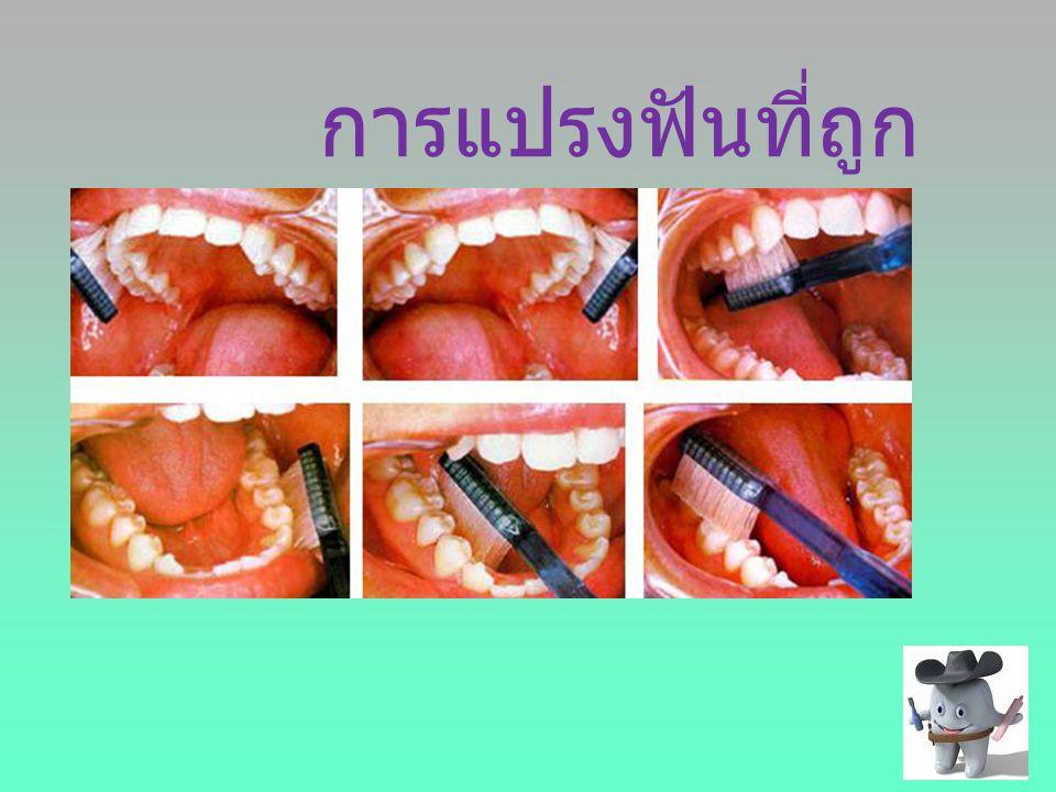 การแปรงฟันที่ถูก วิธี