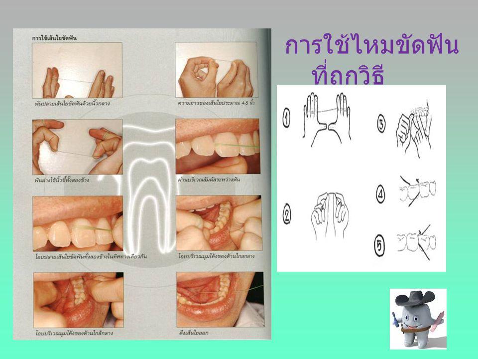 การใช้ไหมขัดฟัน ที่ถูกวิธี