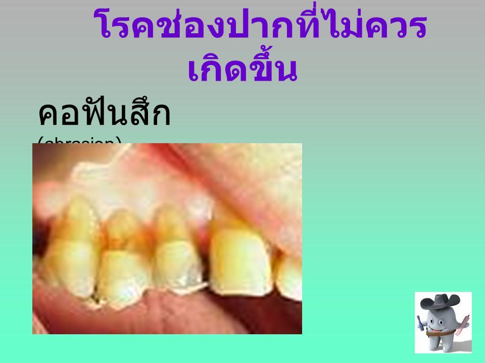 โรคช่องปากที่ไม่ควร เกิดขึ้น คอฟันสึก (abrasion)