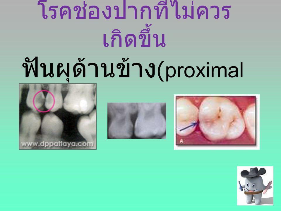 โรคช่องปากที่ไม่ควร เกิดขึ้น ฟันผุด้านข้าง (proximal caries)